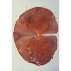 Oreille interne, cochlée, organe de Corti, CT