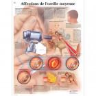PLANCHE : OREILLE HUMAINE, AFFECTIONS DE L'OREILLE MOYENNE